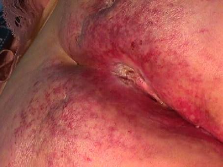 Eczema della ragione e la manifestazione